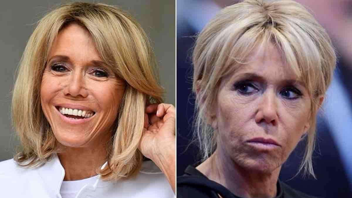 Brigitte Macron méconnaissable, Des changements après son opération ?