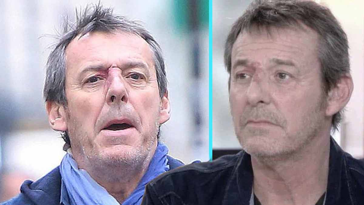 Jean-Luc Reichmann, éjecté de TF1! Il sort enfin de son silence